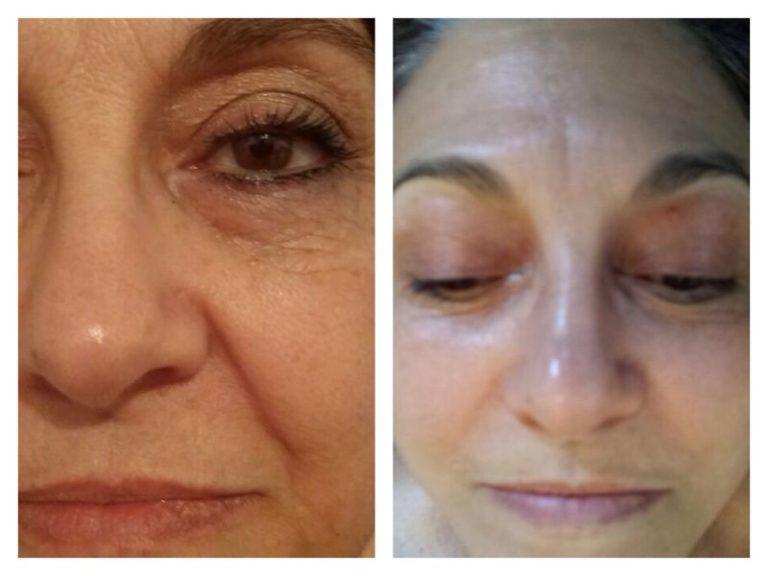 Elaine Brennan Skin Renewal Peeling System 3