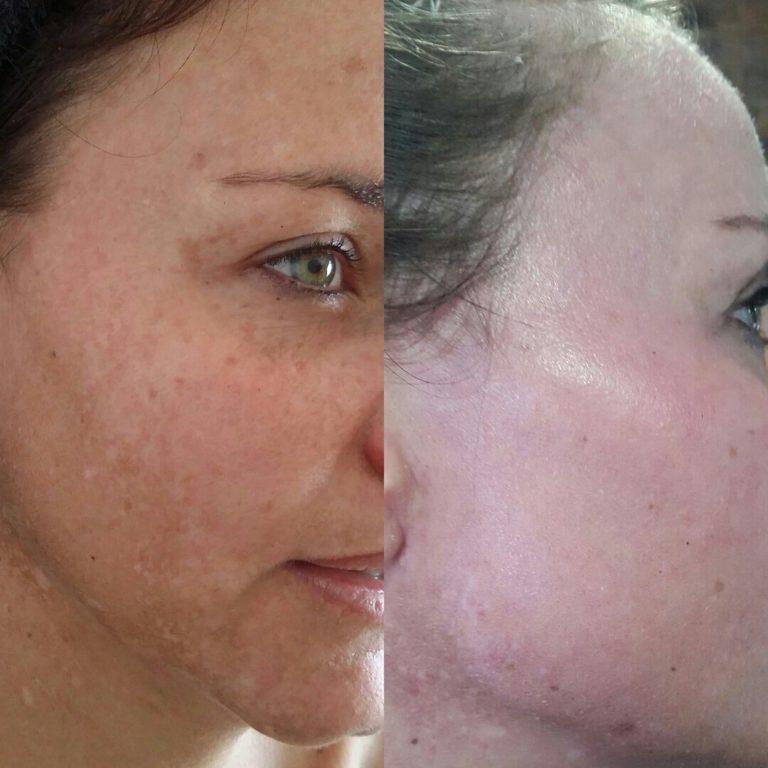 Elaine Brennan Skin Renewal Peeling System 4