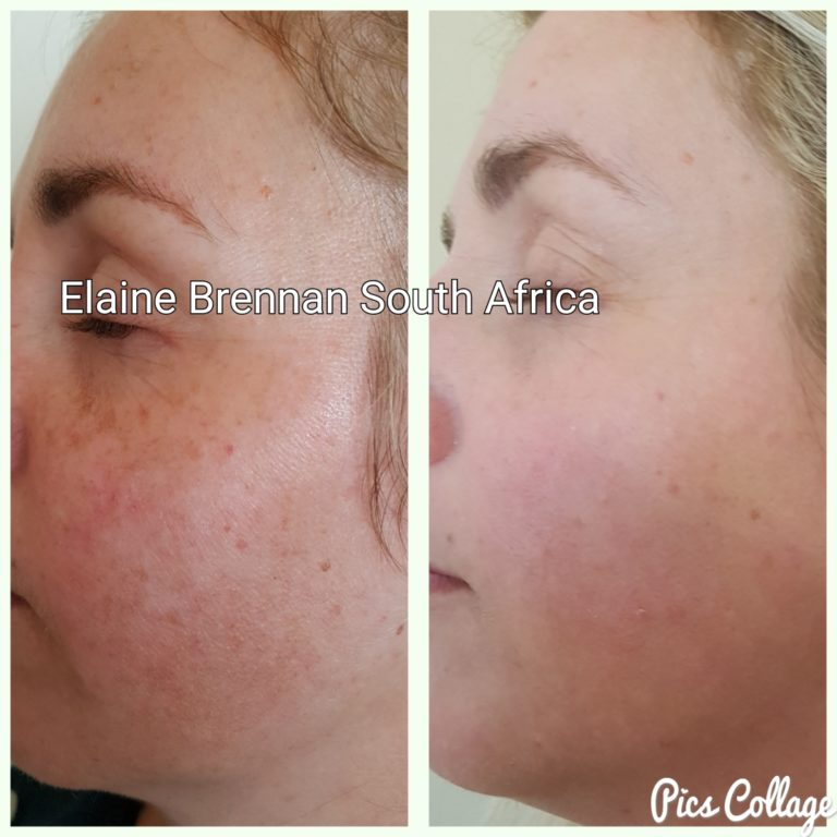 Elaine Brennan Skin Renewal Peeling System 5