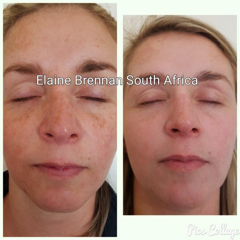 Elaine Brennan Skin Renewal Peeling System 6