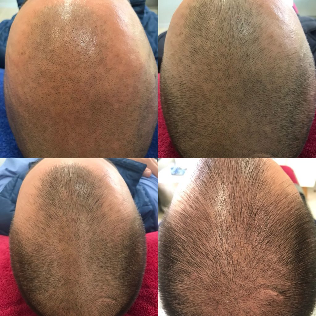 PRP Hairgrowth