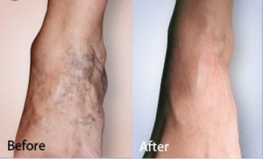 Sclerotherapy 1